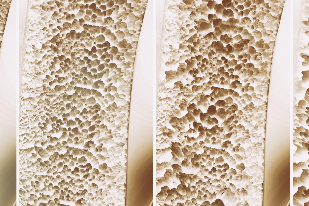 Cosa è l'osteoporosi?